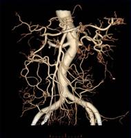腹部血管画像